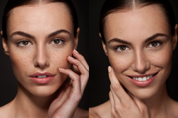 commercial skincare photography with freckles